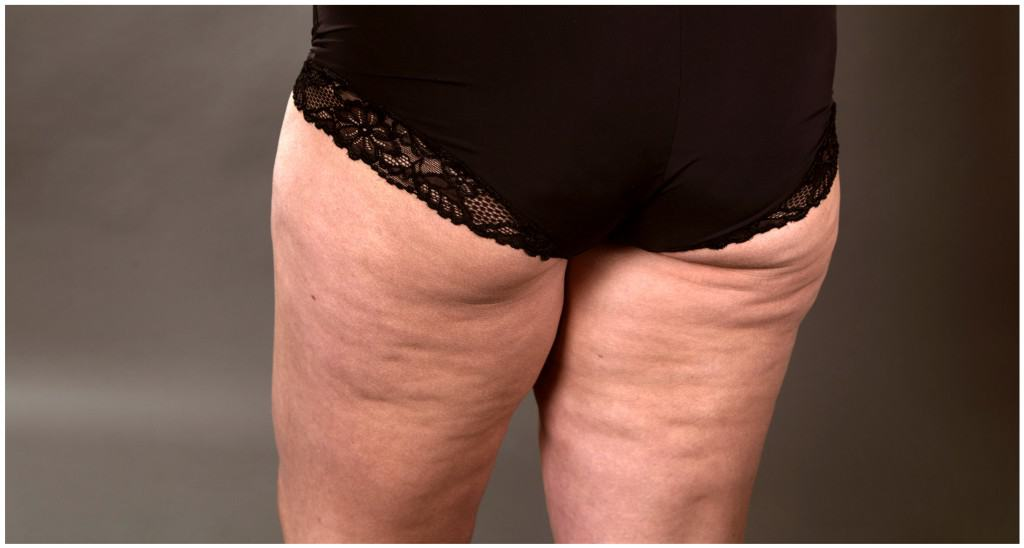 Rumpa och lår med cellulitliknande hud - rumpa och lår med lipödem