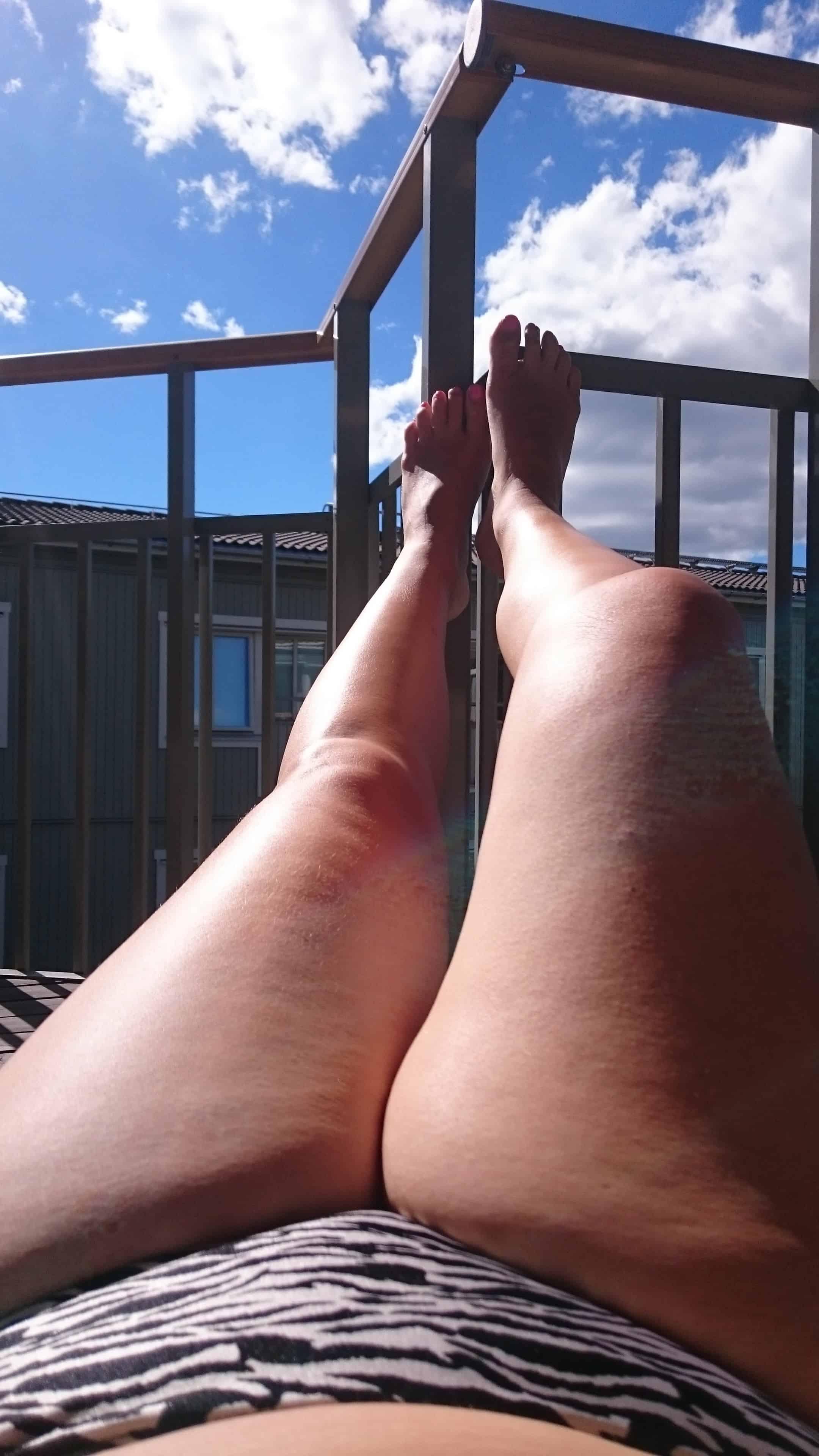 skavsår mellan benen behandling