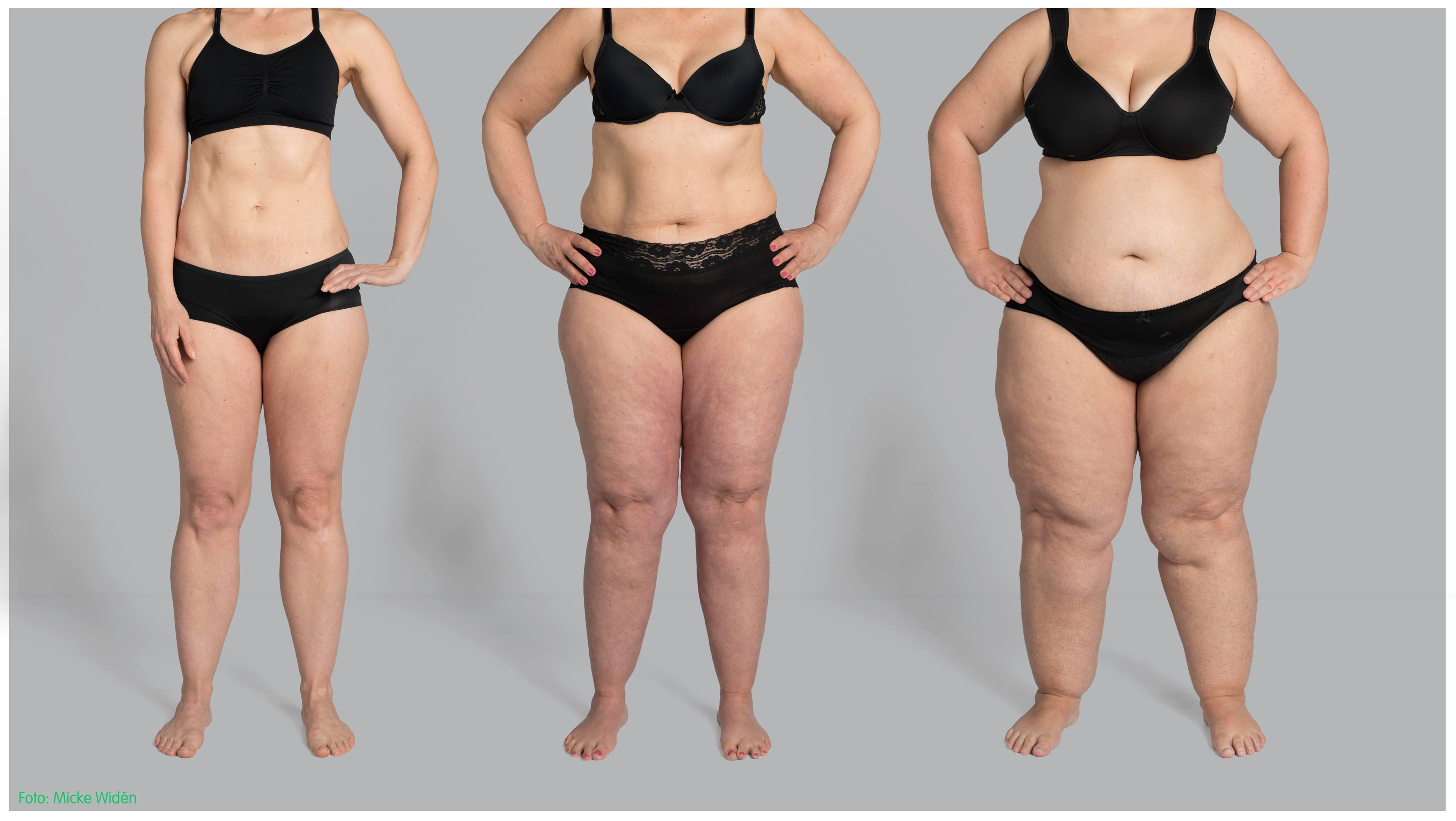 svullnad efter fettsugning